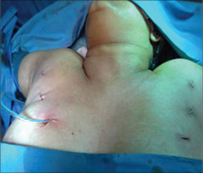 a retrospective analysis of 200 axillary route thyroidectomy cases