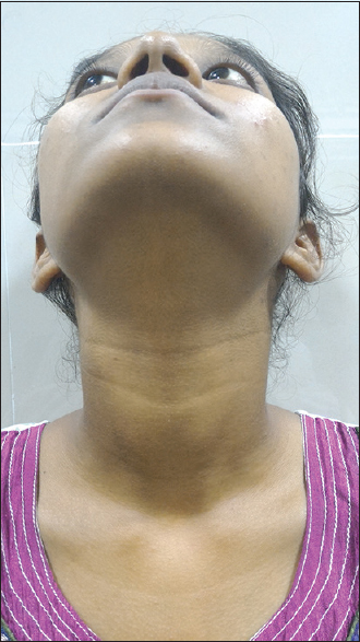 Medullary Carcinoma Of Thyroid Case Report And A Review Of