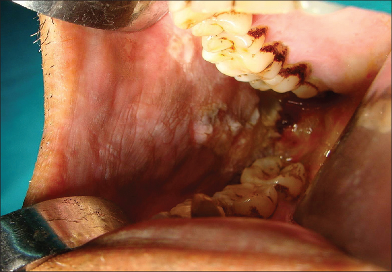 Squamous cell carcinoma of gingivobuccal complex: Literature