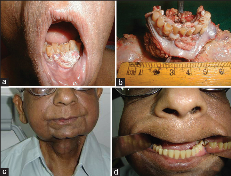 Squamous cell carcinoma of gingivobuccal complex: Literature